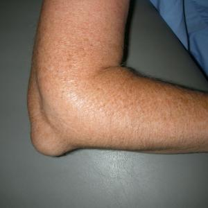 Bursitis olecrani - Symptomen & diagnose
