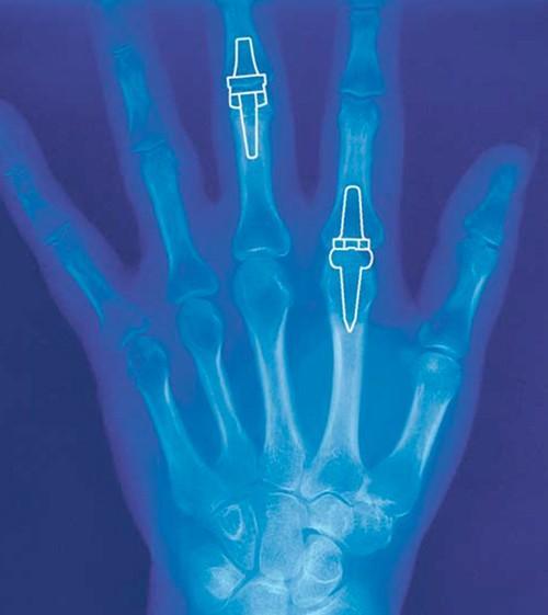 modul de diagnostic al artritei genunchiului condroitină și lichid glucozamină