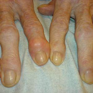 artrita tratamentul artritei homeopatie durere articulația umărului stâng și a umărului